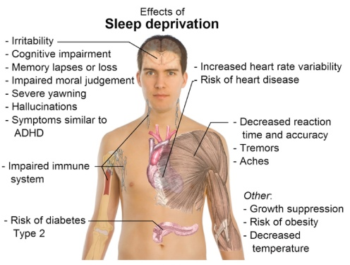 effect-of-sleep-deprivation-gem-magazine-long-island-womens-magazine